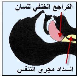 معلومات عن بلع اللسان , الإسعافات الأولية في حالة بلع اللسان