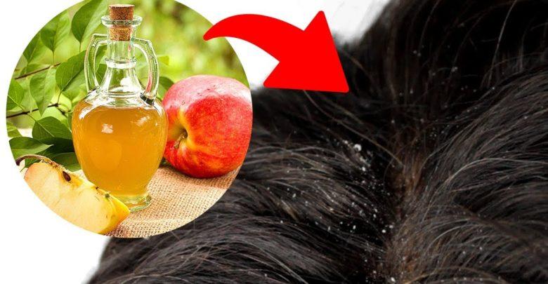 طريقة التخلص من قشرة الشعر , وصفات طبيعية فعالة لعلاج القشرة