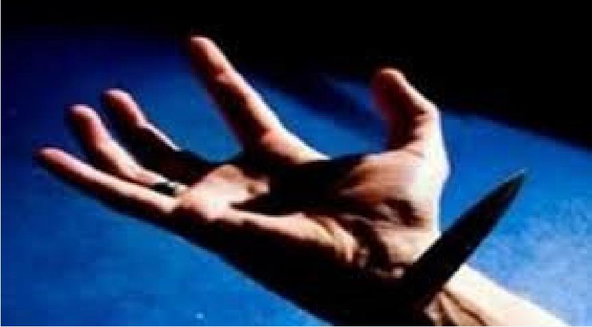 شروط قطع يد السارق , كيفية القطع عند ثبوت السرقة