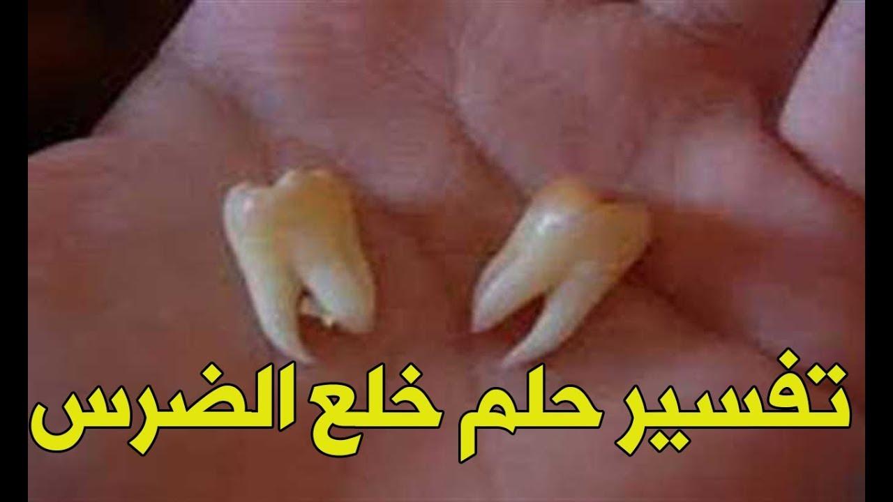 تفسير حلم الاسنان وسقوطها في المنام لابن سيرين
