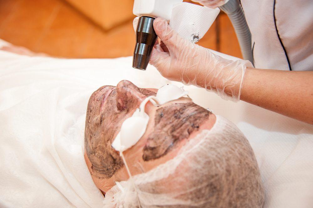 ما هو تقشير الوجه بالليزر , فوائد ونصائح بعد التقشير