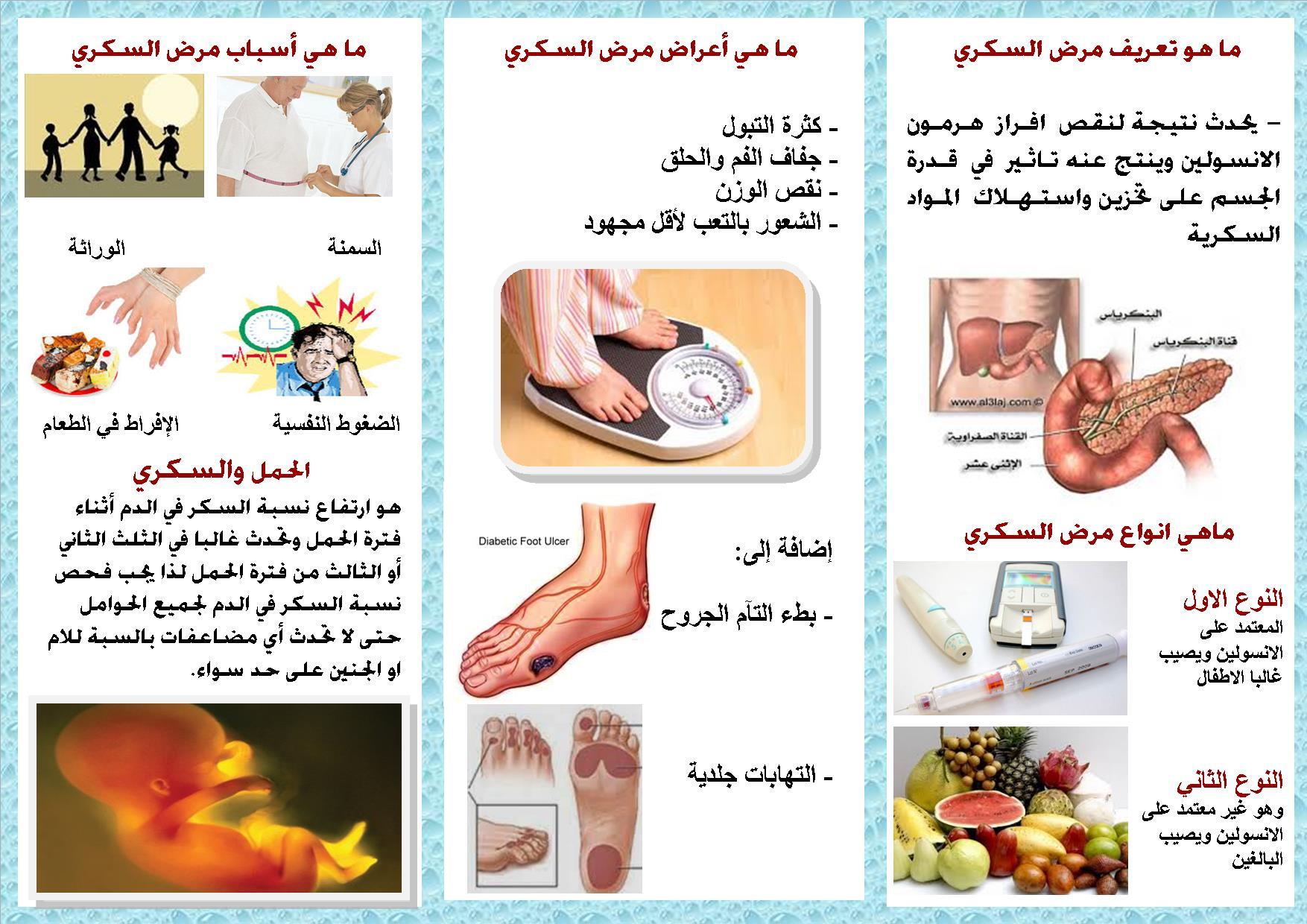 مرض السكري والحمل نصائح للوقاية من الإصابة بمرض السكر