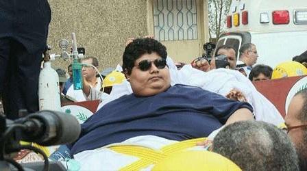 شاب سعودي يبلغ وزنه 610 كيلوغرامات، انتظر ستة أشهر لإجراء عملية لتخفيف وزنه