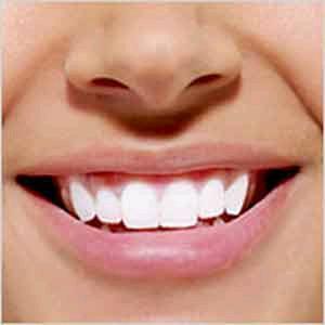 طرق طبيعية لتبيض الاسنان 2014 , كيفية التخلص من اصفرار الاسنان 2014