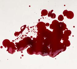 تفسير رؤيا الدم في المنام 2014 , معنى رؤيا الدم في المنام 2014