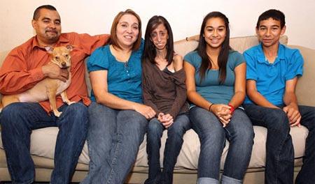 صور أنحف بنت في العالم 2014 , صور أنحف فتاة في العالم وزنها 26.7 كيلوغرام 2014