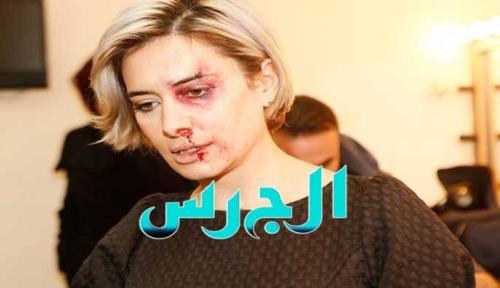 صور كارين سلامة بعدما ضربها زوجها 2014 ,صور الاعلامية كارين سلامة بعدما ضربها زوجها