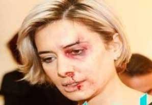 صور الاعلامية كارين سلامة تتعرض للضرب المبرح