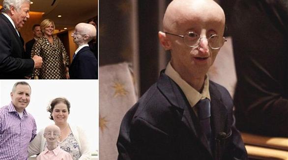 وفاة شاب في 17 من عمره بسبب مرض الشيخوخه المبكرة