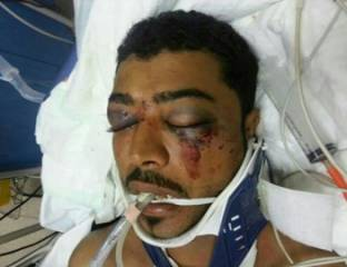 اسباب وفاة الشهيد المصاب عبدالعزيز العبار , صور عبد العزيز العبار