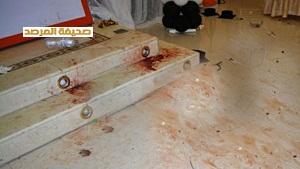 صور وفاة الطالبة ضحية الالعاب النارية حفل تخرج قاعة أفراح بخميس مشيط اليوم 1435