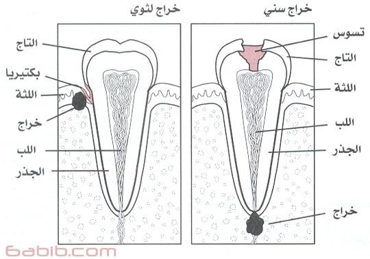 خراج الاسنان Tooth abscess , الاعراض حساسية السن للسخونة