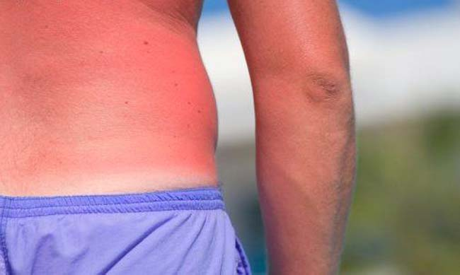 علاج حرق اشعة الشمس , كيف تعالج حروق اشعة الشمس