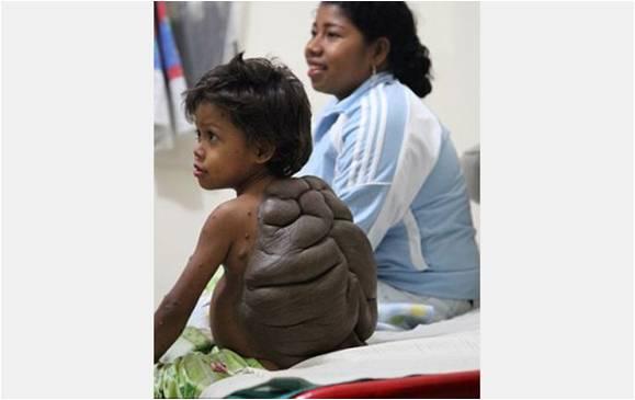 صور من معاناة الطفل السلحفاة