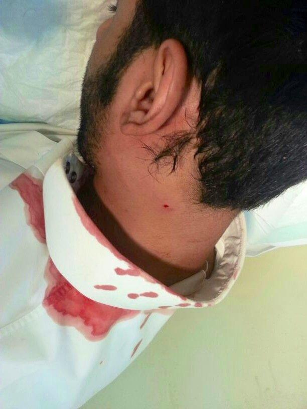 صور الاعتداء على معلم حرر محضر غش لطالب فى الأحساء