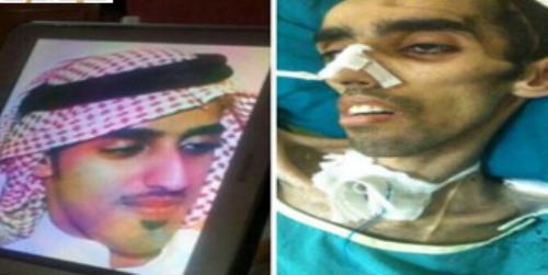 بالصور فتاة سعودية تناشد علاج خطيبها بندر العنزي ضحية التفحيط