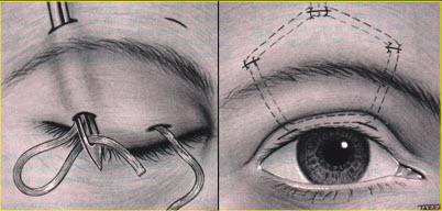 ارتخاء جفون العين الخلقي Congenital Ptosis