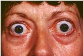 تأثيرات أمراض الغده الدرقيه على العين