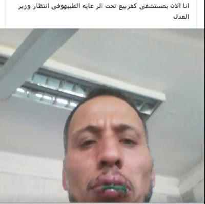 صور مصري يقوم بخياطة فمه شاهد السبب