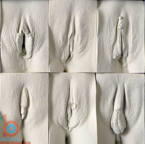 المهبل بالصور انواع المهبل بالصور صور اشكال فتحة المهبل