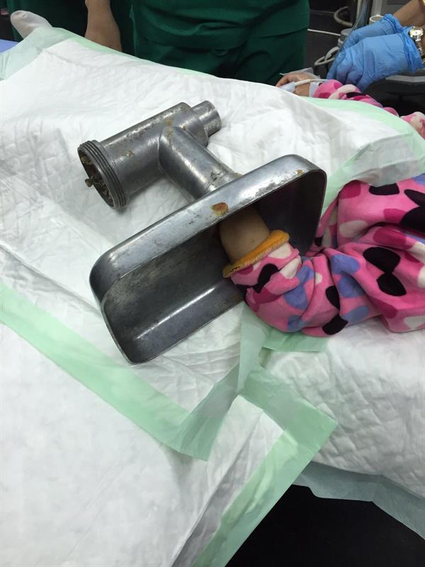صور تحرير يد طفلة من فرامة لحم بالرياض في مستشفى الملك سلمان الطبي