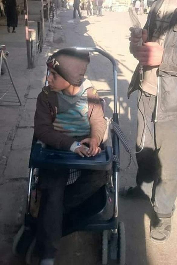 ماذا فعل حصار بشار وحزب الله بأطفال سوريا شاهد الصور
