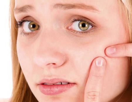 فيتامين بي 12 مسؤول عن زيادة حب الشباب