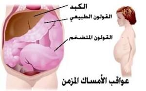 علامات الاصابة بالامساك ، مسببات حدوث الامساك