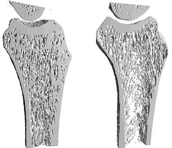 علاج هشاشة العظام - كيف تتعاملين مع مرض هشاشة و لين العظام