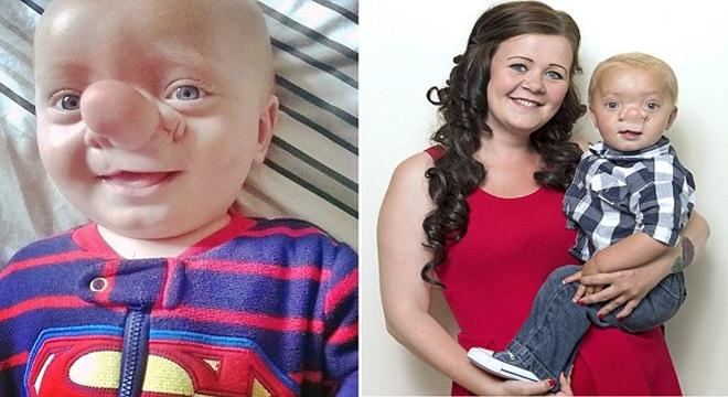 بالصور طفل بريطاني مصاب بمرض نادر التهاب الدماغ دماغه داخل أنفه