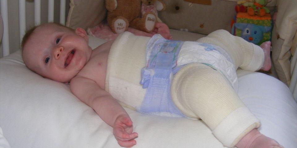 معلومات عن خلع الورك الولادي للاطفال - كيفية التعامل مع الخلع الوركي للاطفال