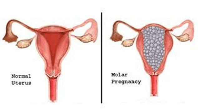 تشخيص الحمل العنقودي , أعراض الحمل العنقودي , علاج الحمل العنقودي