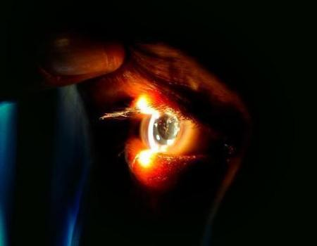 تركيا الأولى عالمياً في السياحة الطبية بجراحة العيون