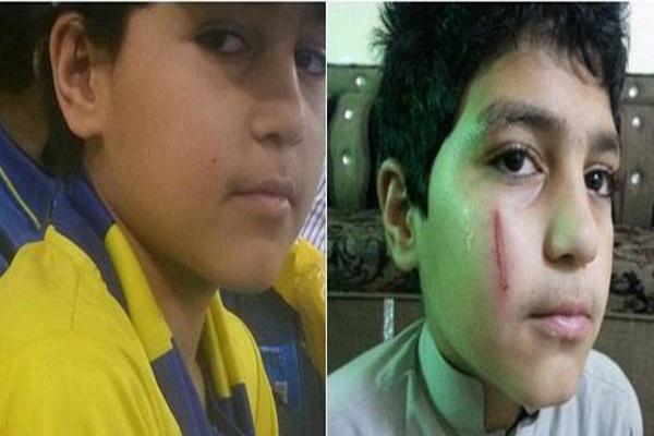 شاهد معلم يعتدي على طالب ويضربه على وجهه في مدرسة بالمدينة المنورة السعودية