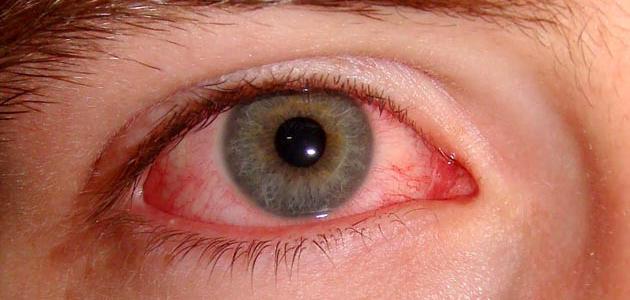 كيفيه علاج امراض العين ، امراض العين