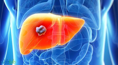 اطعمة لعلاج الكبد ، طرق لعلاج مرضى الكبد