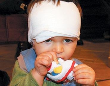 التعامل مع اصابات راس الاطفال - اخطار الاصابة بالراس عند الاطفال