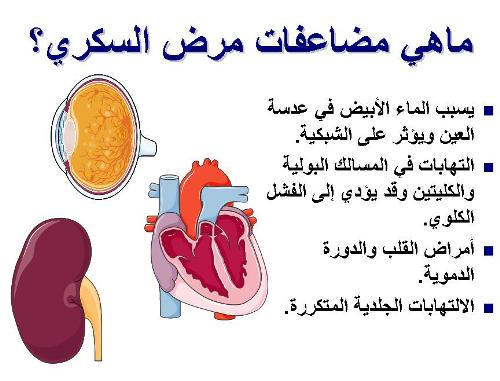 منشورات عن السكر , صور مكتوب عليها اعراض ارتفاع السكر