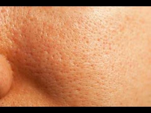 معاجة المسام الواسعة - طريقة لعلاج مسام الوجه الواسعة 2016