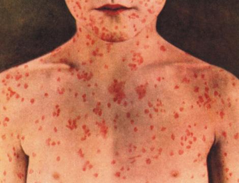 التعامل مع مرض الحصبة الالمانية - التعرف علي مرض الحصبة الالمانية وعلاجها